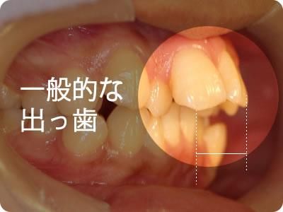 出っ歯を治す方法 出っ歯のタイプ別原因と対策、矯正治療について
