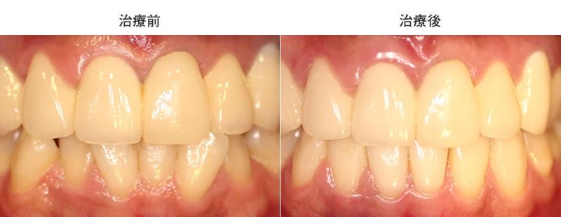下前歯のみの部分矯正症例前後写真