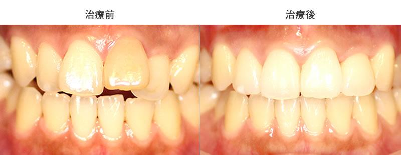 出っ歯治療前後写真