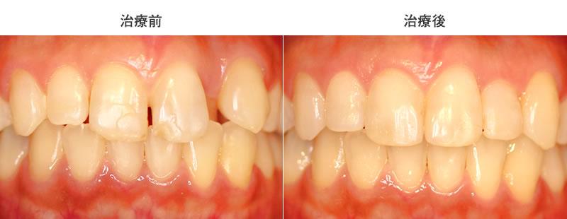 舌側転移・空隙歯列の治療前後写真