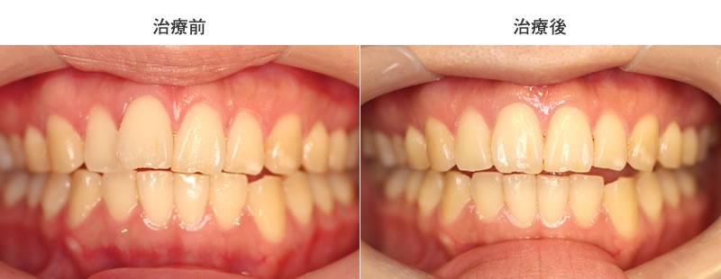 前歯1本の出っ歯矯正前後写真