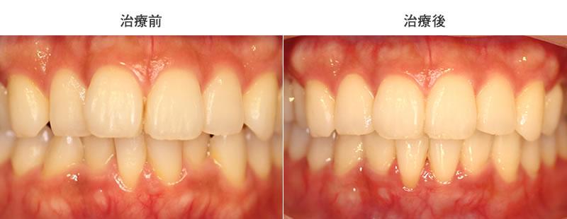 上下前歯の叢生を部分矯正した治療前後写真