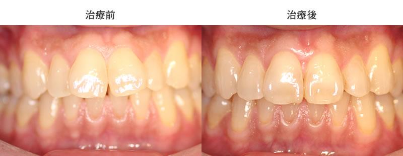 出っ歯の部分矯正治療前後写真