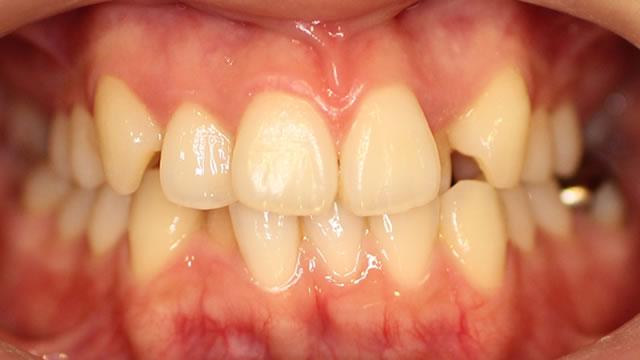 八重歯の部分矯正治療前写真・正面