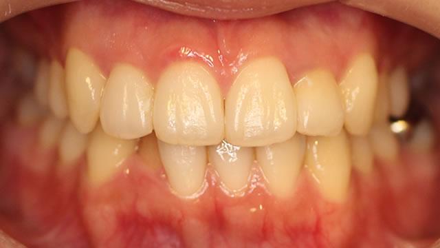 八重歯の部分矯正治療後写真・正面