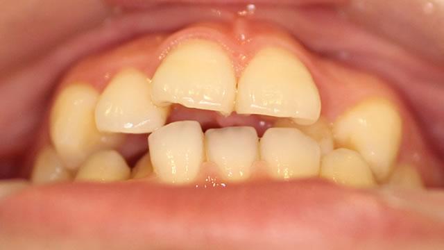 八重歯の部分矯正治療前写真・下から