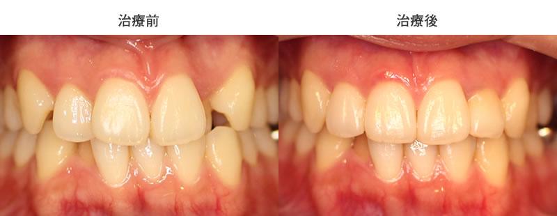 八重歯の部分矯正治療前後写真