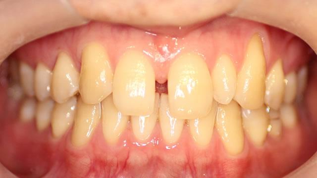 すきっ歯・部分矯正治療前・正面写真