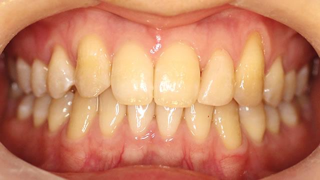 すきっ歯・部分矯正治療後・正面写真