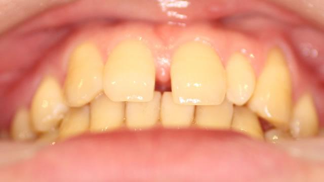 すきっ歯・部分矯正治療前・下から