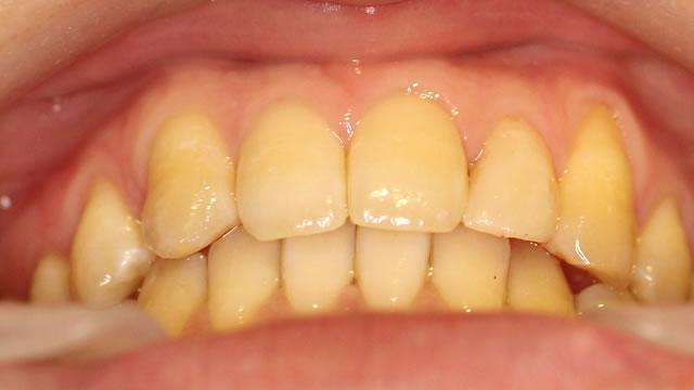 すきっ歯・部分矯正治療後・下から