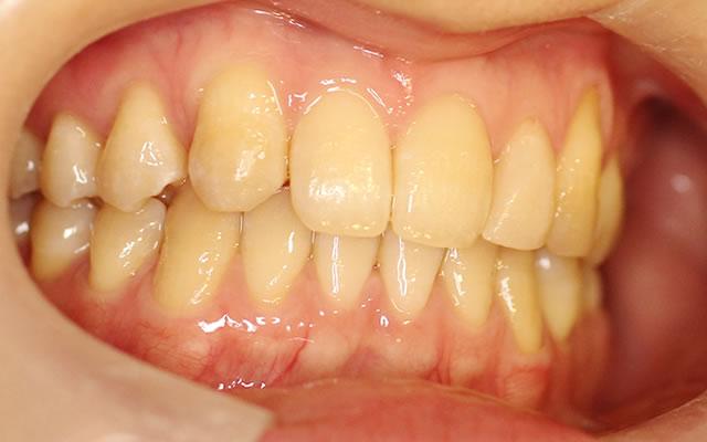 すきっ歯・部分矯正治療後・右から