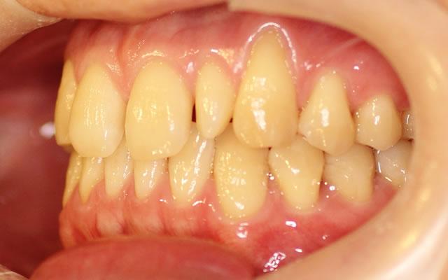 すきっ歯・部分矯正治療前・左から