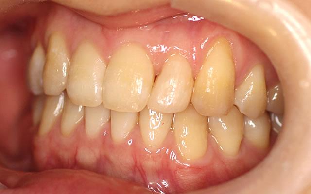 すきっ歯・部分矯正治療後・左から