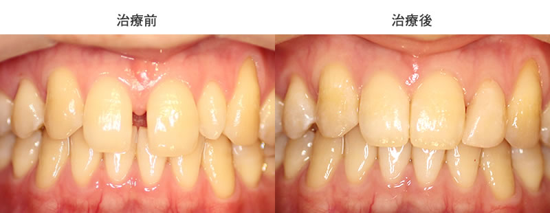 すきっ歯・部分矯正治療前後写真