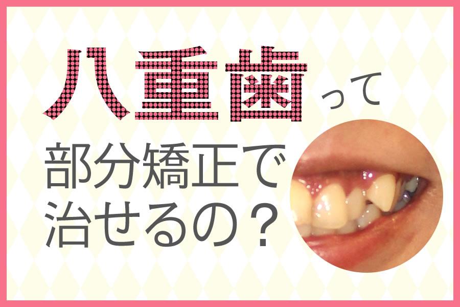 八重歯って部分矯正で治せるの?