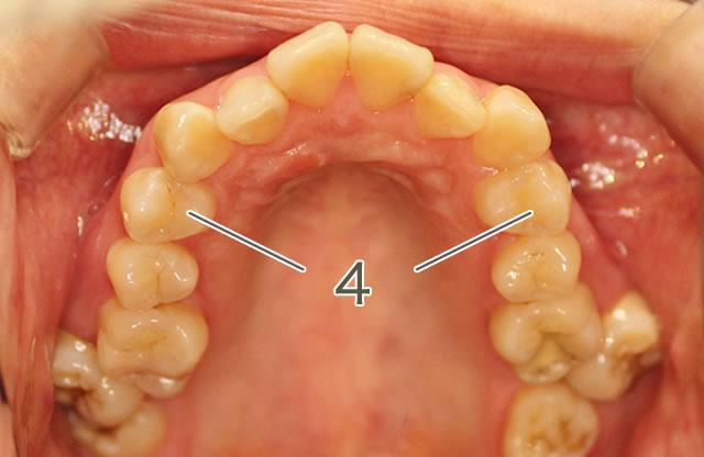 出っ歯治療前の咬合面写真