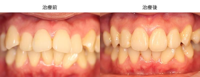 出っ歯矯正治療前後の正面写真