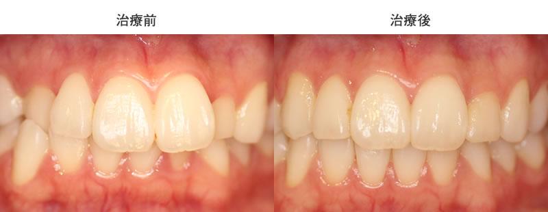 上下前歯の叢生・犬歯反対咬合の部分矯正症例前後写真