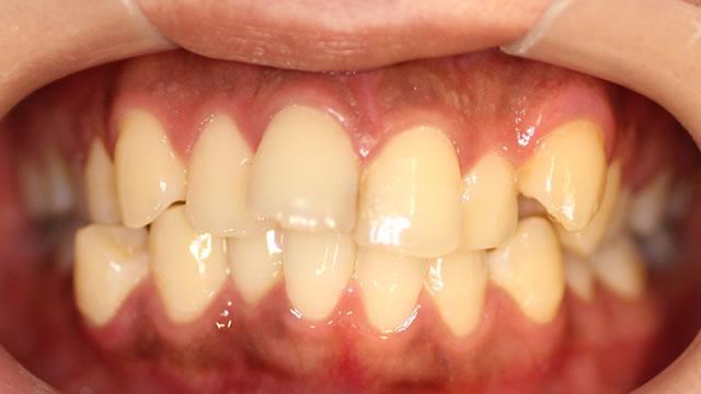 出っ歯・八重歯の矯正前(正面)