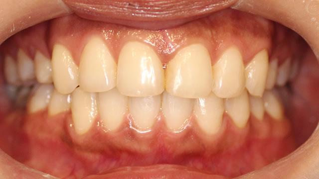出っ歯・八重歯の矯正後(正面)
