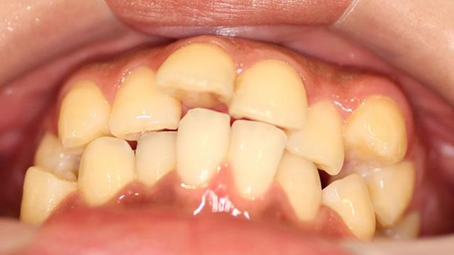 出っ歯・八重歯の矯正前(下から)