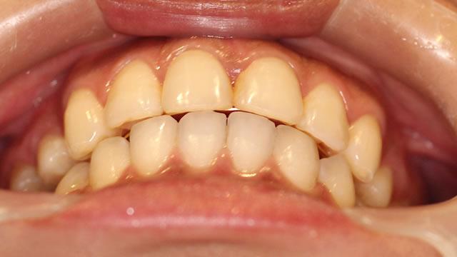 出っ歯・八重歯の矯正後(下から)