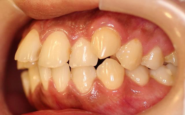 出っ歯・八重歯の矯正前(左から)