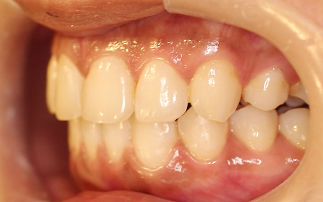出っ歯・八重歯の矯正後(左から)