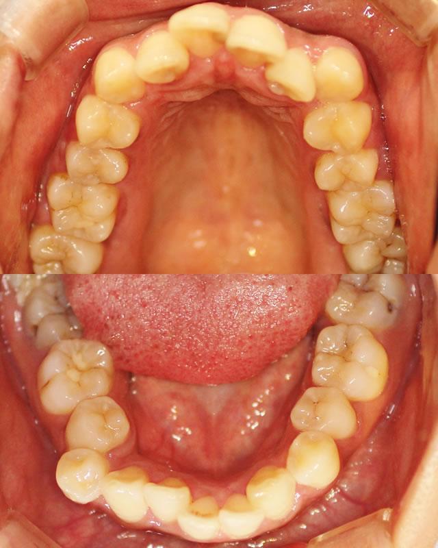 出っ歯・八重歯の治療前(咬合面)