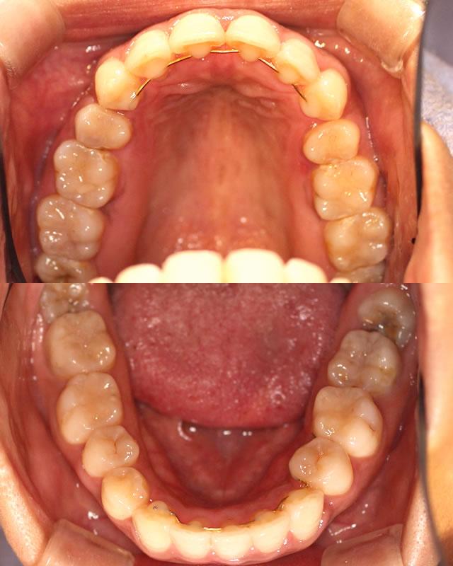 出っ歯・八重歯の治療後(咬合面)