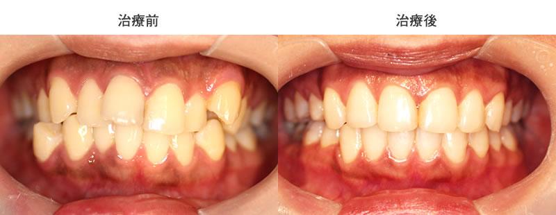 出っ歯・八重歯の部分矯正前後写真