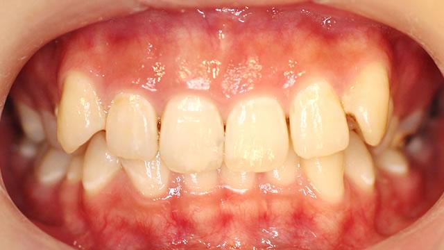 八重歯の部分矯正治療前(正面)