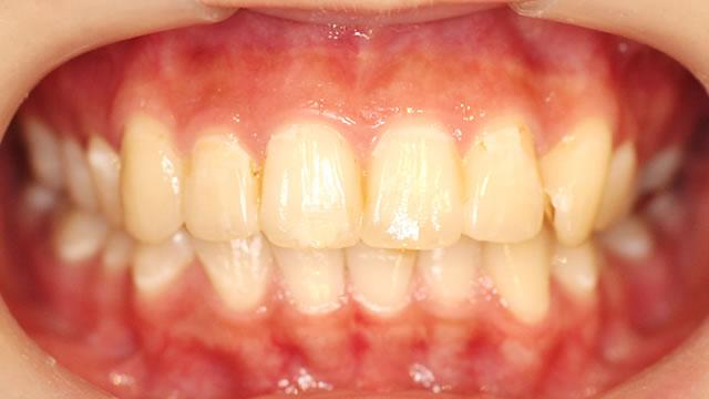 八重歯の部分矯正治療後(正面)