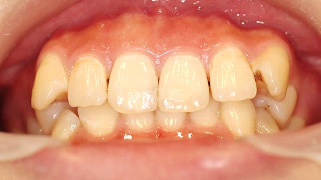 八重歯の部分矯正治療前(下から)