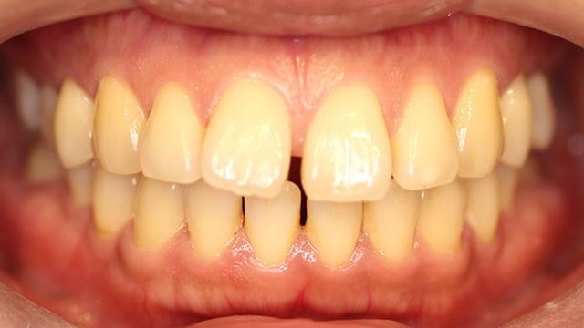 すきっ歯の部分矯正治療前写真