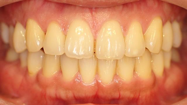 すきっ歯の矯正後写真(正面)