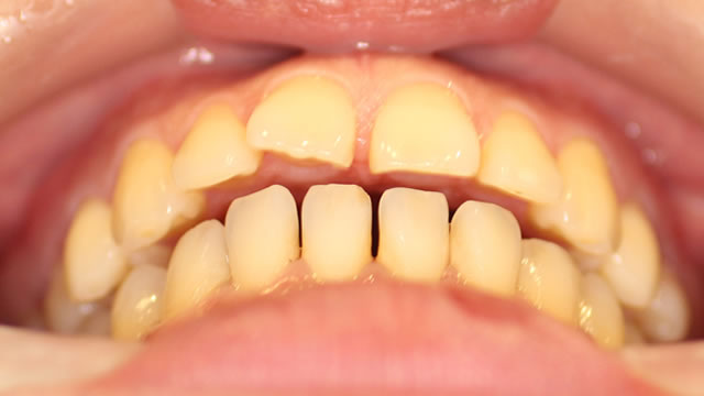 すきっ歯の矯正前写真(下から)