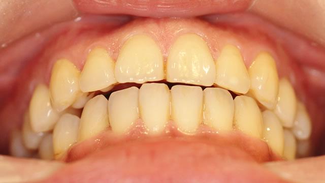 すきっ歯の矯正後写真(下から)
