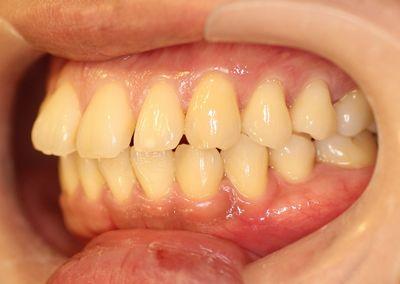 オープンバイト・すきっ歯の治療前