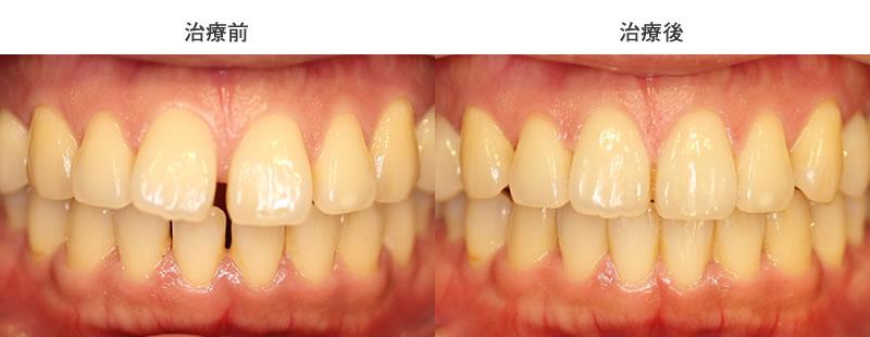 すきっ歯を部分矯正で治療した前後写真