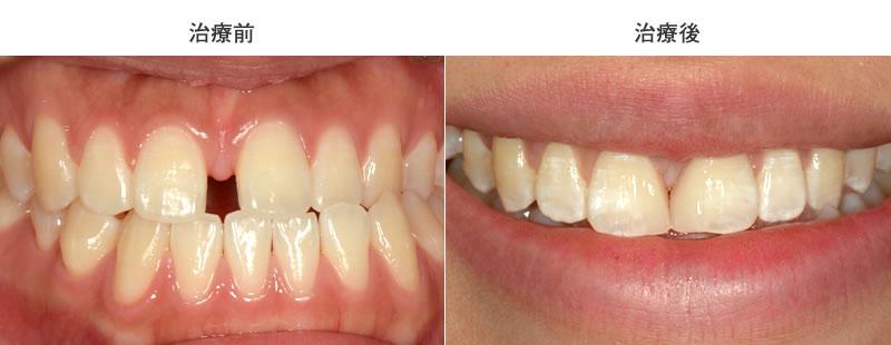 すきっ歯を補綴で治療した症例(ノブデンタルオフィス)