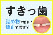 すきっ歯、詰め物で治す?矯正で治す?