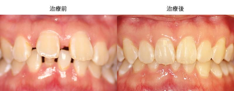すきっぱ・出っ歯・過蓋咬合の部分矯正治療前後写真