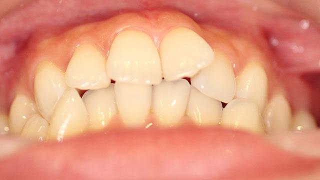 反対咬合の治療前(下から)