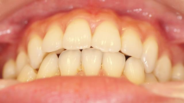 反対咬合の治療後(下から)