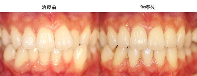 叢生・クロスバイト・ウィンギングを抜歯と部分矯正で治した症例