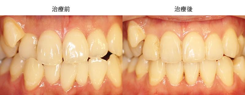 前歯のズレ・反対咬合を部分矯正した症例
