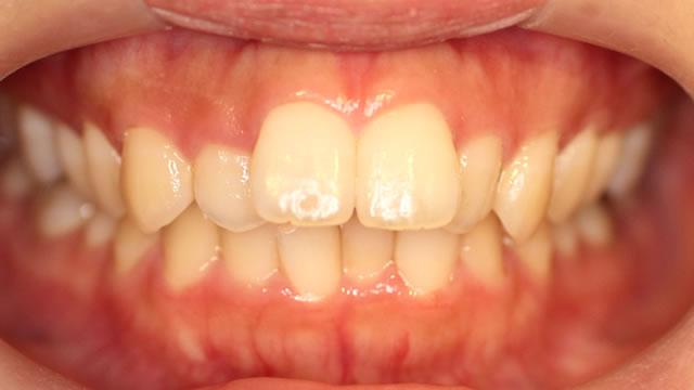 軽度な出っ歯の部分矯正前・正面写真