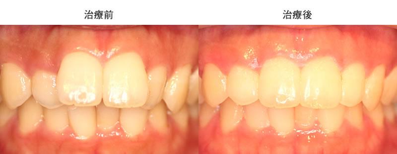 軽度な出っ歯の部分矯正前後写真